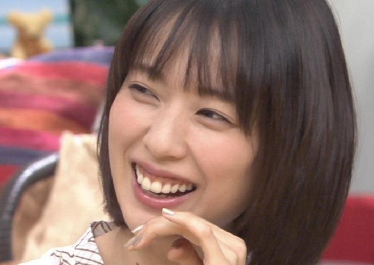 戸田恵梨香が歯肉手術した?今と昔の歯茎画像を作品別にまとめ【比較検証】